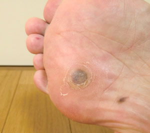足の裏にできる痛い魚の目!魚の目の原因と取り方や治し方について